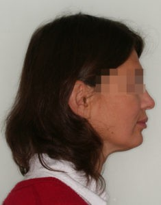 Лечение височно-нижнечелюстного сустава (ВНЧС) фото 4