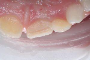 Реставрация зубов в клинике Ортокон Харьков фото 2