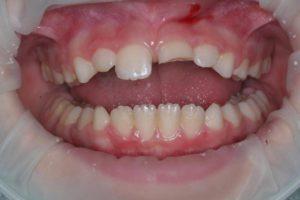 Реставрация зубов в клинике Ортокон Харьков фото 3
