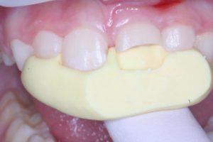 Реставрация зубов в клинике Ортокон Харьков фото 4