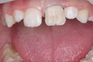 Реставрация зубов в клинике Ортокон Харьков фото 6