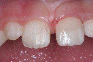 Реставрация зубов в клинике Ортокон Харьков фото 8