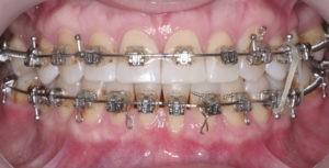 Детализация отдельных зубов фото