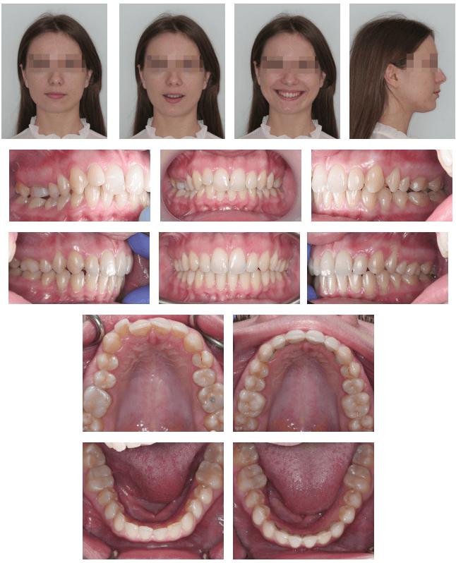 Пациентка после лечения (исправленный зубной прикус) фото