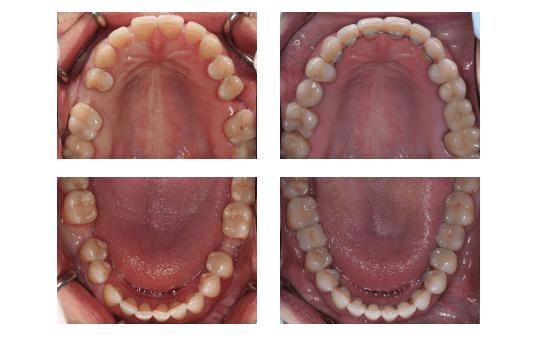 Металлокерамическими реставрации фото 2