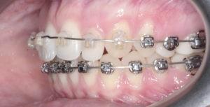 Панорамный снимок зубов (ОПТГ) фото 3