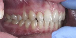 Снятие брекетов на зубах верхней и нижней челюстей фото 2