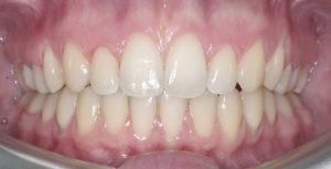 Снятие брекетов на зубах верхней и нижней челюстей фото 3