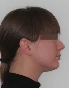 Лечение височно-нижнечелюстного сустава фото 4
