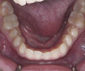 Лечение дисфункции ВНЧС зубов фото