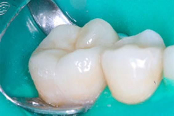 Ортодонтическое лечение зубов фото 3