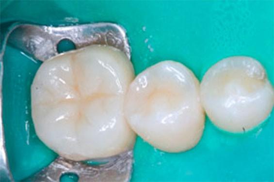 Ортодонтическое лечение зубов фото 4