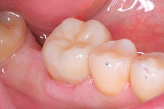 Ортодонтическое лечение зубов фото 5
