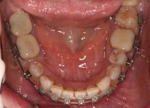 Уставнока временных коронок на зубах фото
