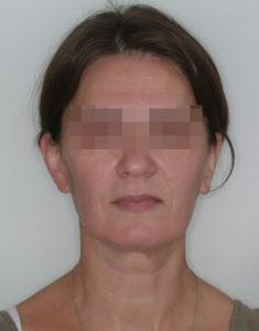 Результат лечения дисфункции височно-нижнечелюстного сустава фото