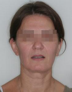 Результат лечения дисфункции височно-нижнечелюстного сустава фото 2