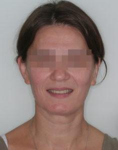 Результат лечения дисфункции височно-нижнечелюстного сустава фото 3