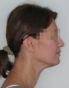 Результат лечения дисфункции височно-нижнечелюстного сустава фото 4