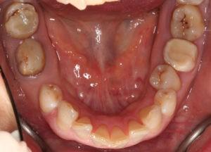 Результат лечения дисфункции височно-нижнечелюстного сустава фото 11